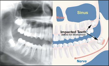 tooth-1