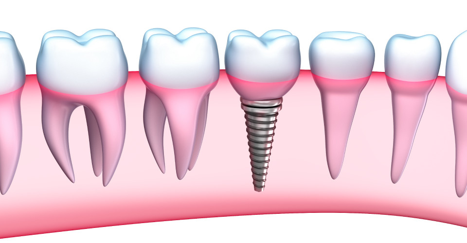 DentalImplantsImage